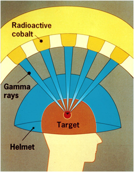 diagram of gamma knife surgery with gamma rays directed through a helmet at the target brain tumor